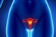 Применение Бальзама Римский при бактериальном вагинозе